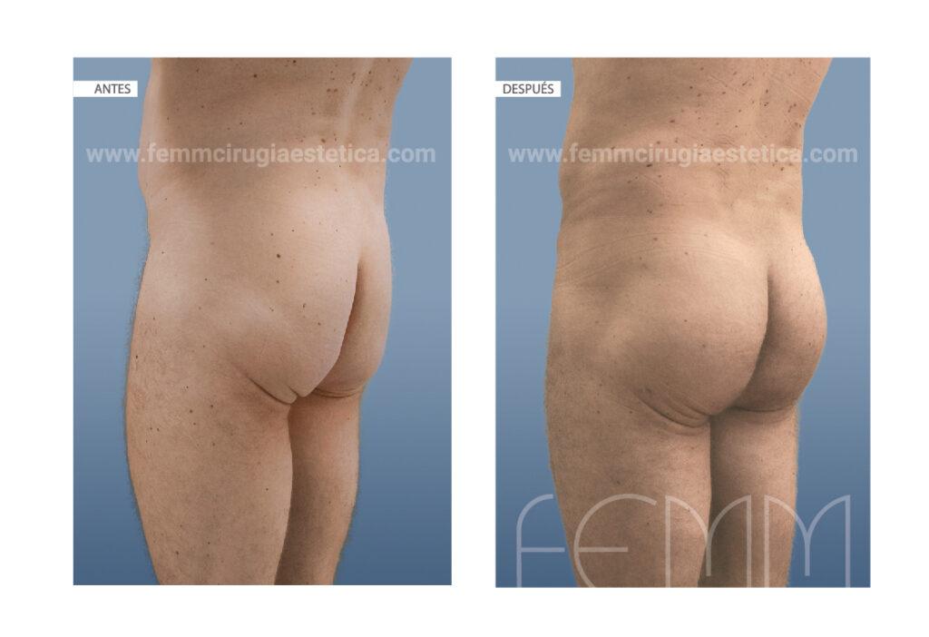 Aumento de glúteos con implante
