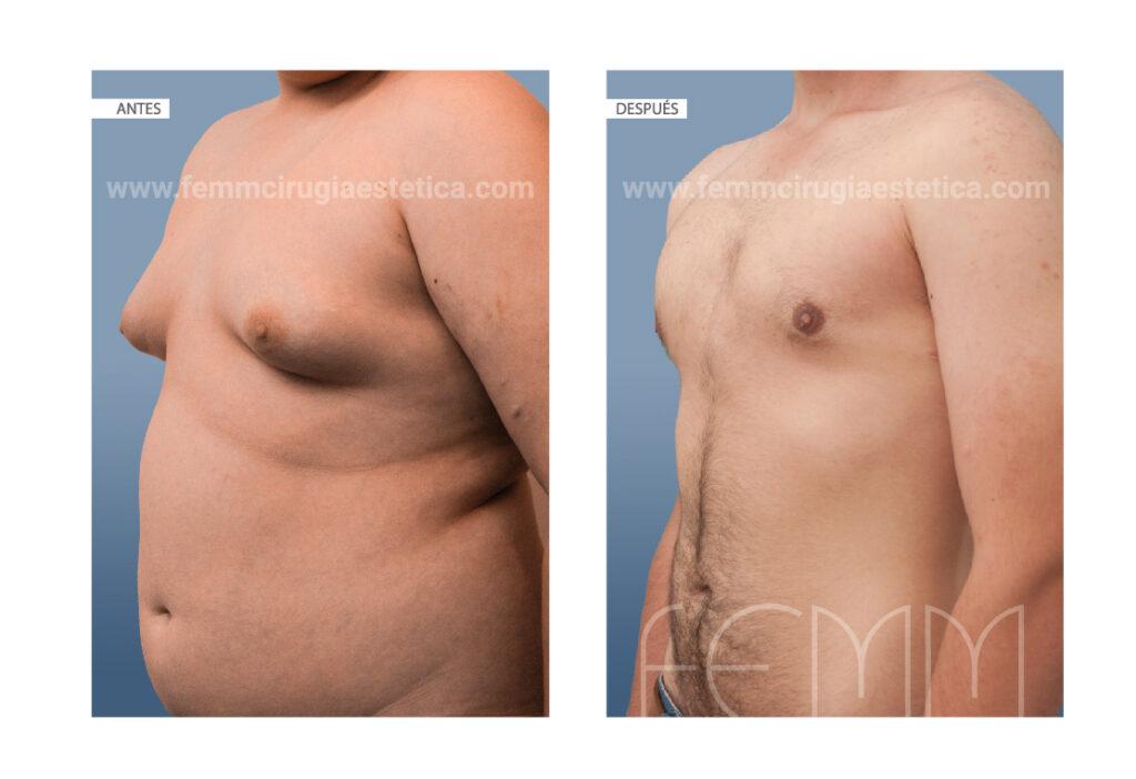 Ginecomastia mediante liposucción