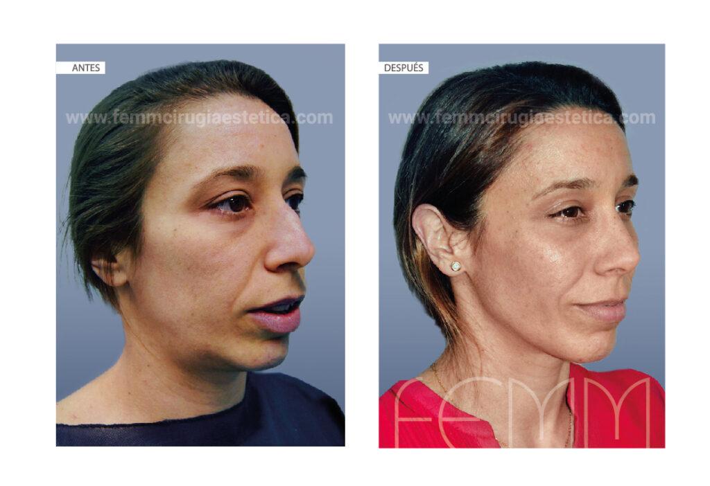 Relleno con grasa de distintos compartimentos faciales