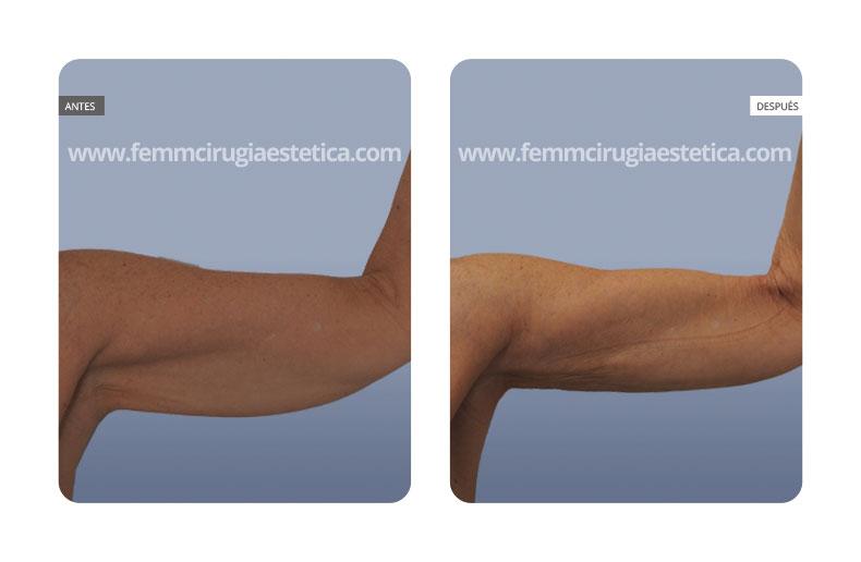 Eliminación de flacidez en los brazos con BodyTite