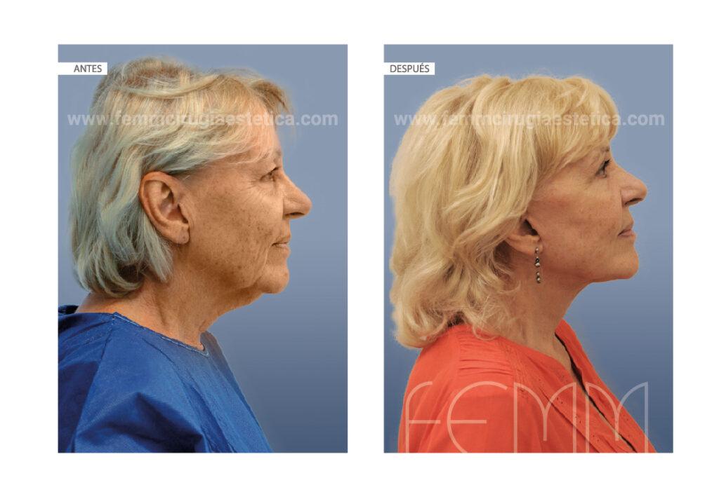 Rejuvenecimiento total de cara y cuello