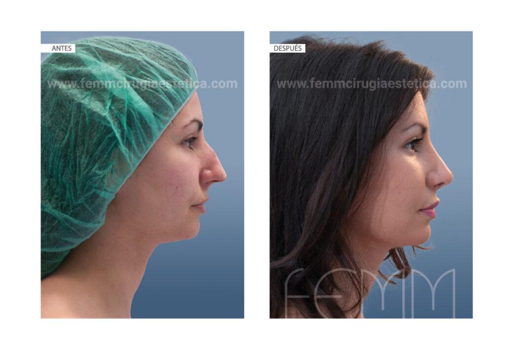 Rinoplastia con reducción de dorso y afinación de la punta de la nariz.